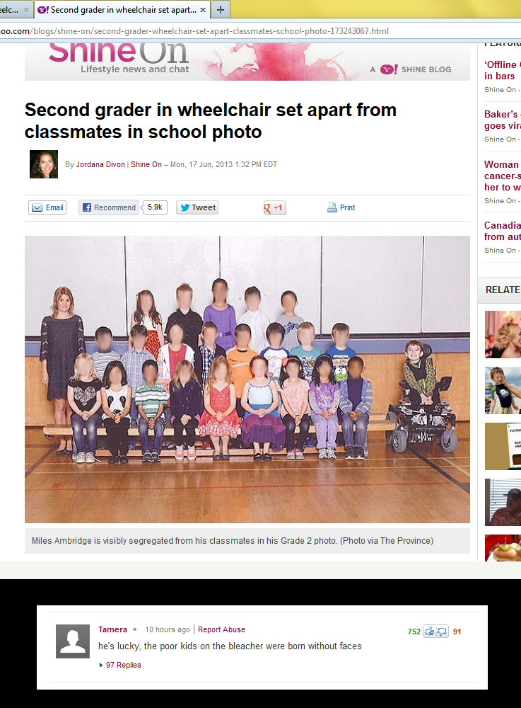 A second grader in a wheelchair set apart from classmates in a photo is lucky because he was born with a face while his classmates were not.